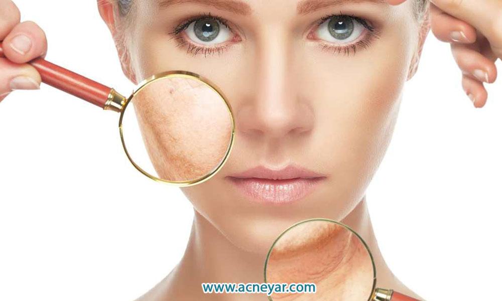 انواع پوست و محصولات ضروری مراقبت از پوست