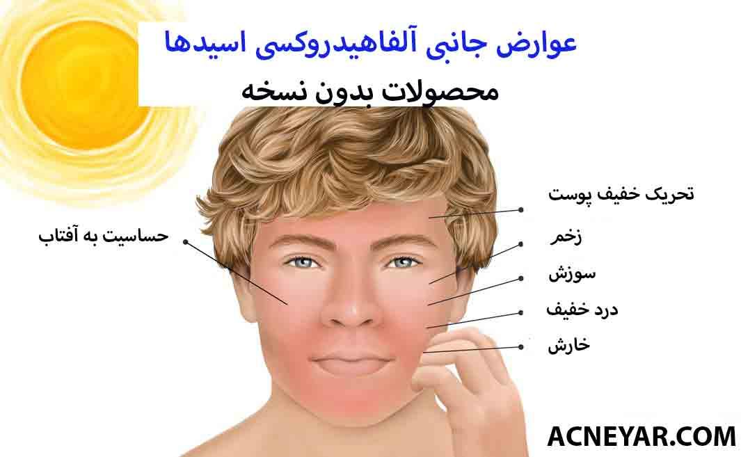 عوارض جانبی aha در درمان جوش صورت