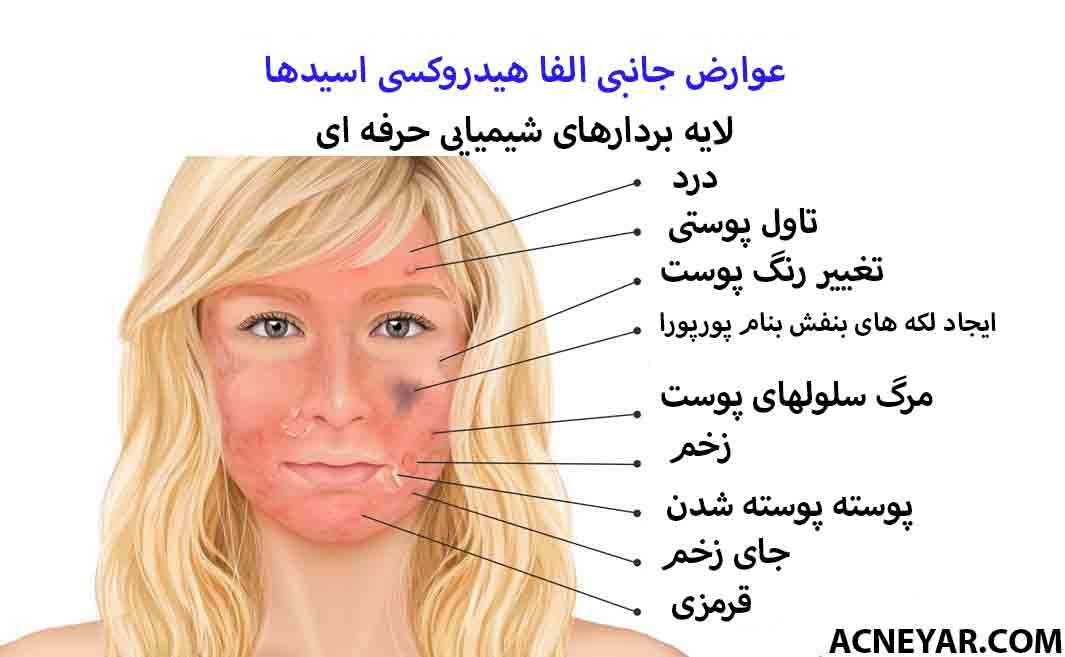 آلفا هیدروکسی اسید و لایه برداری