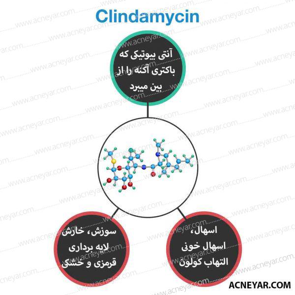 کلیندامایسین در درمان جوش