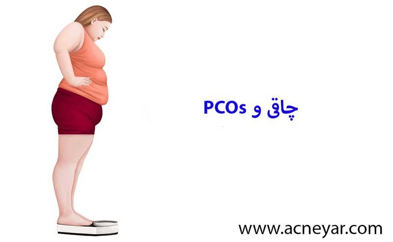 چاقی در زنان و PCOs