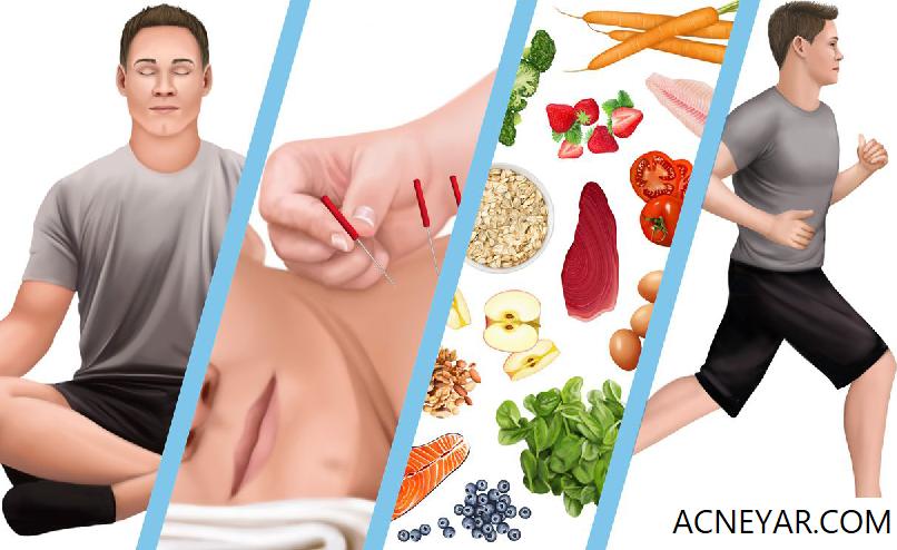 درمان های مکمل در از بین بردن جوش: مراقبه/یوگا/هیپنوتیزم. ورزش.رژیم غذایی سالم. طب سوزنی