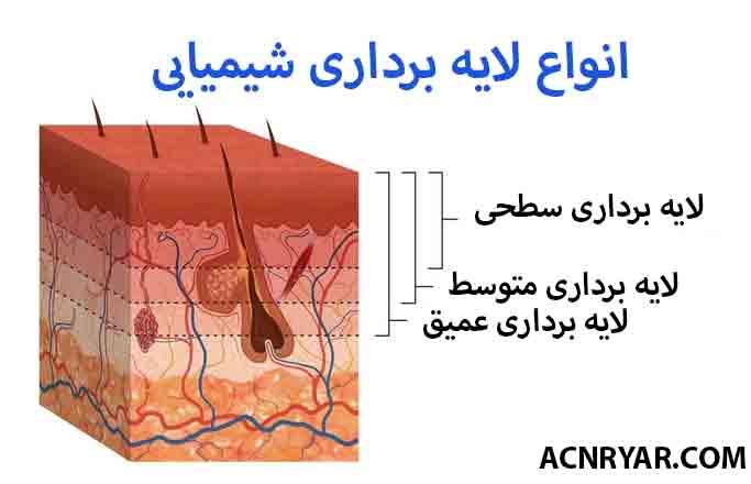 پیلینگ شیمیایی در درمان جوش ( آکنه )