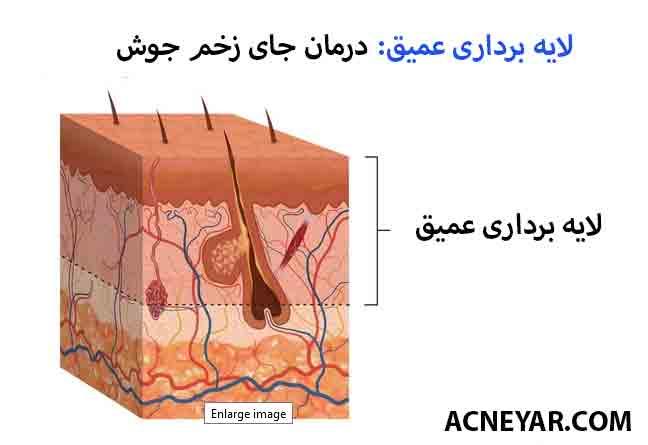 پیلینگ شیمیایی در درمان جوش ( آکنه ) و جای زخم