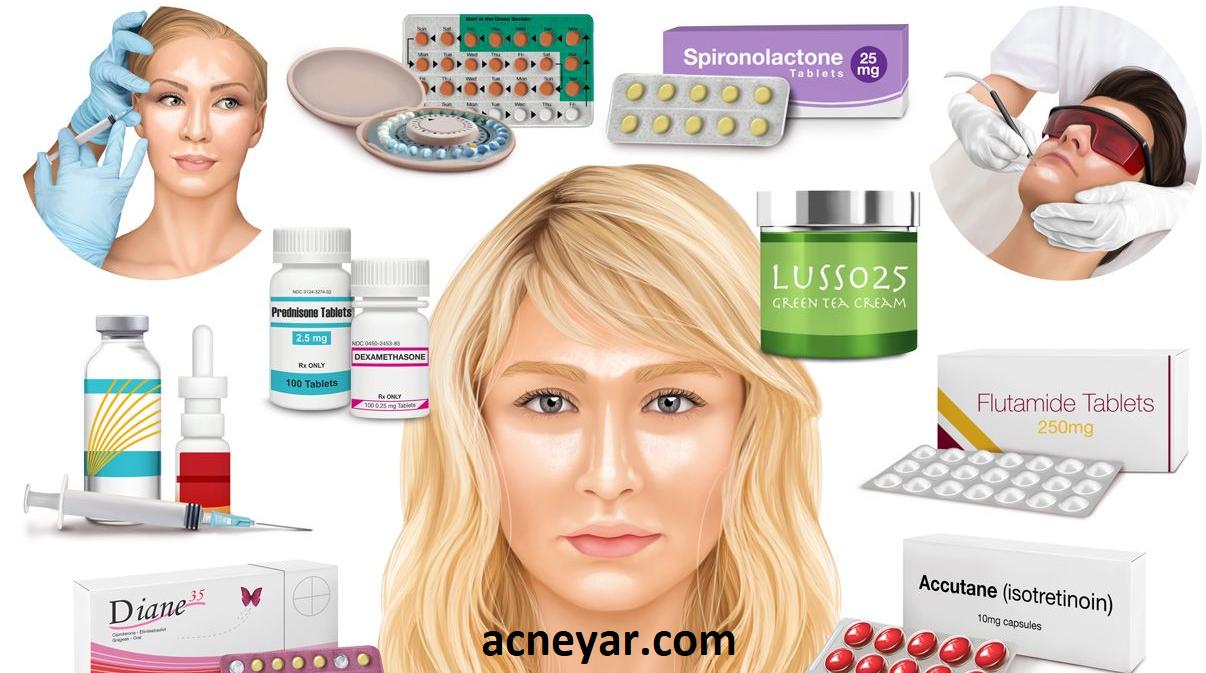 درمان چربی پوست یا سبوره