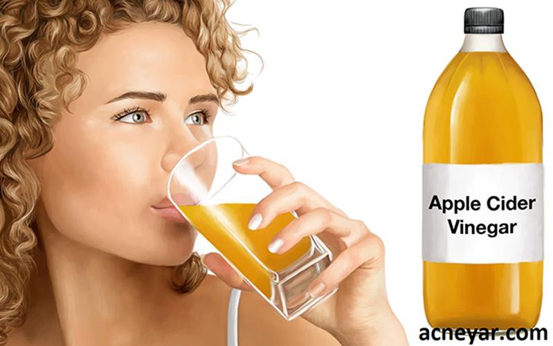 تصویر از سرکه سیب برای درمان جوش صورت خوب است؟