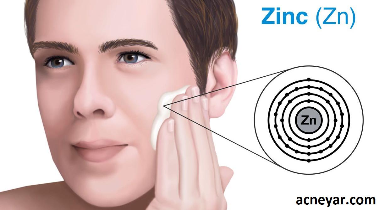 درمان جوش با زینک
