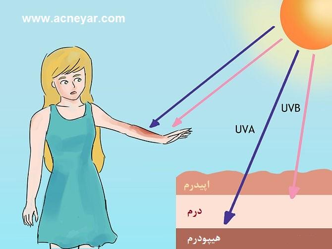 اثر آفتاب بر پوست